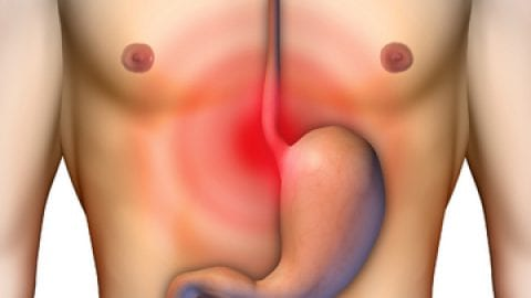 The Different Reasons Behind An Acid Reflux